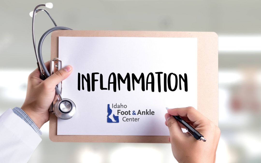 Relief from Pain and Inflammation!