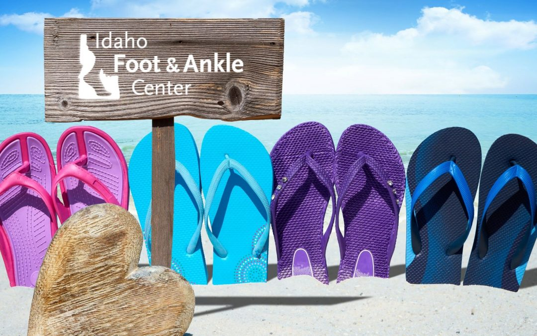 Support your Feet this Summer!