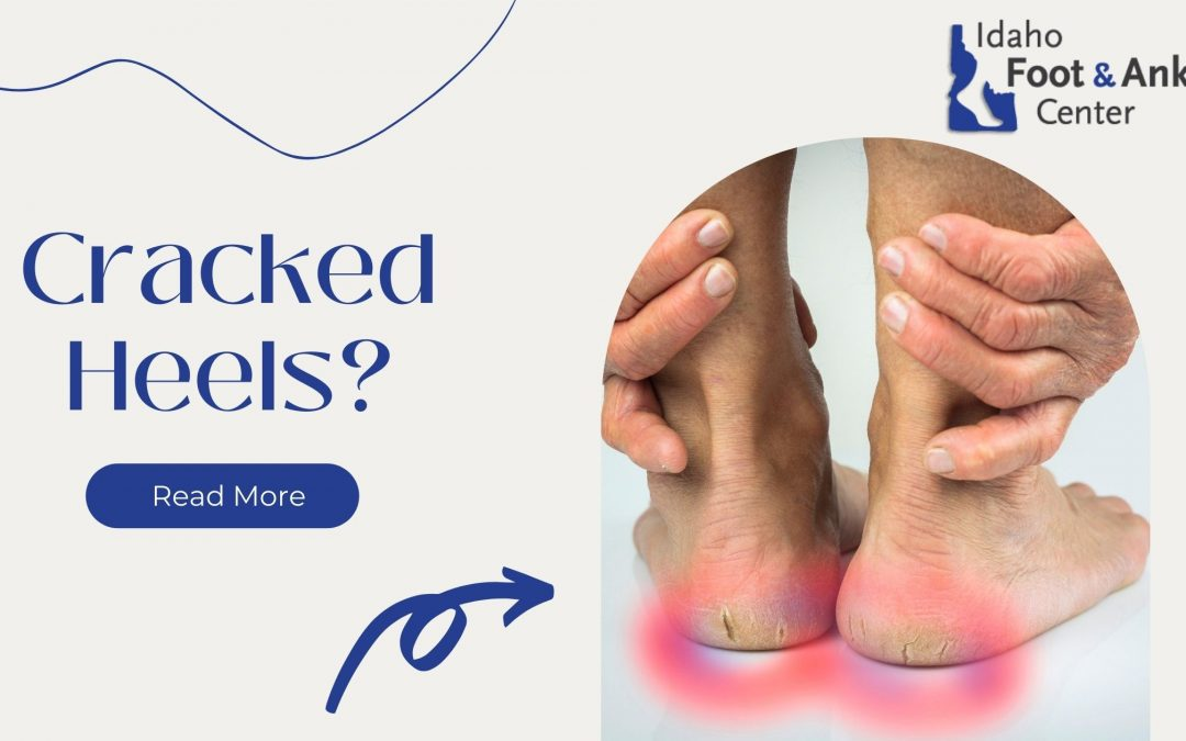 Care for Cracked Heels